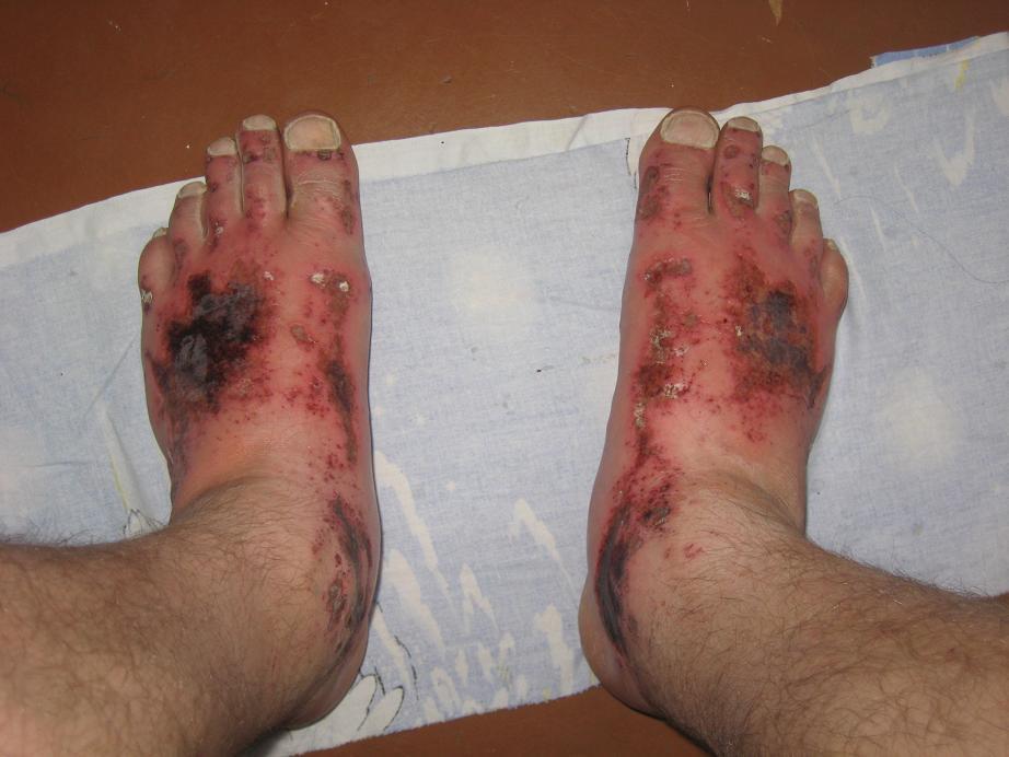 ожог ноги бетоном