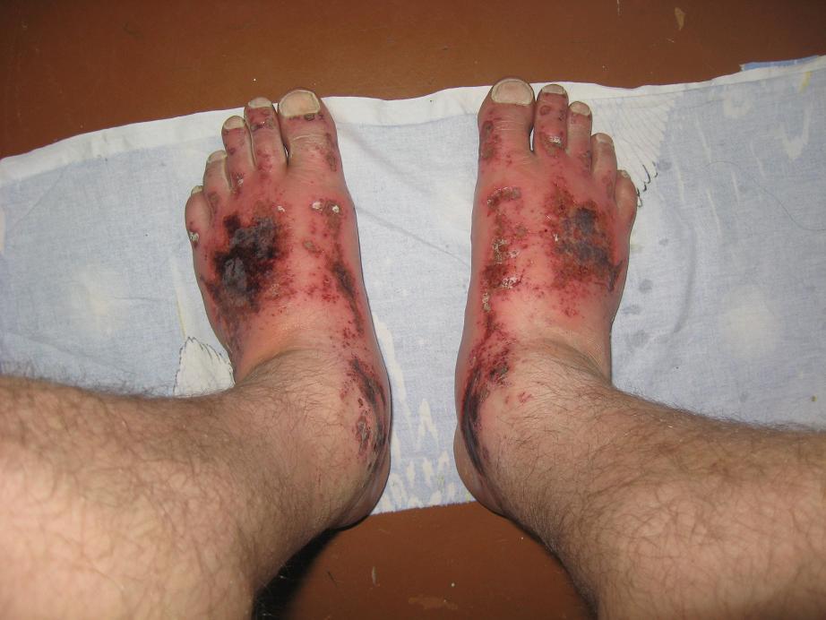 Ожог ноги бетоном бетонная смесь в20 цена